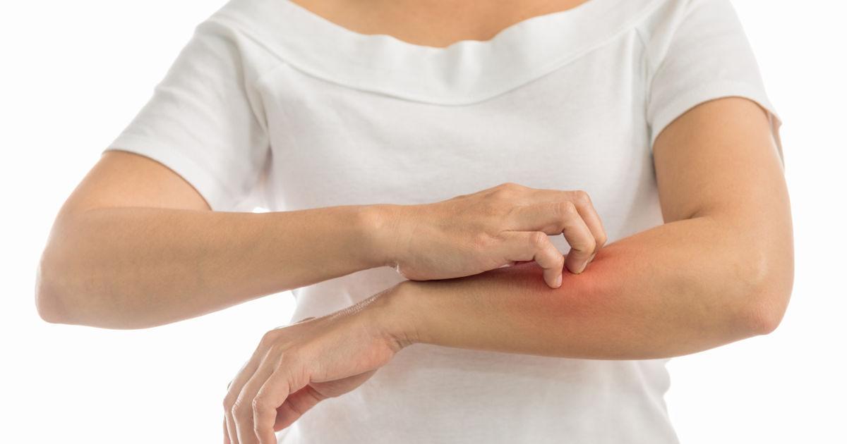 hogyan lehet pikkelysömör gyógyítani réz-szulfáttal a hónalj közelében vörös foltok viszketnek