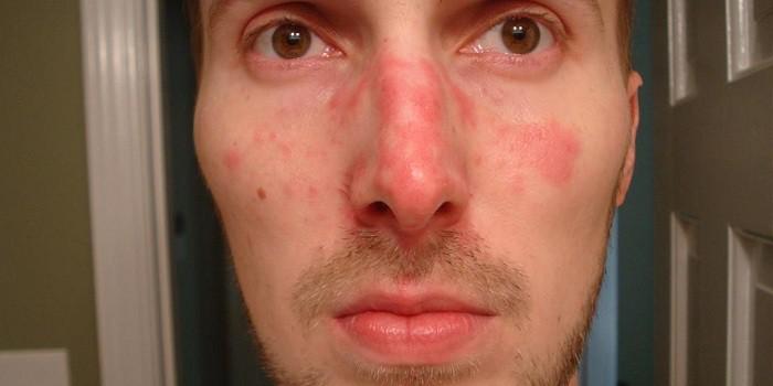 vörös foltok az arcon a gyomorból