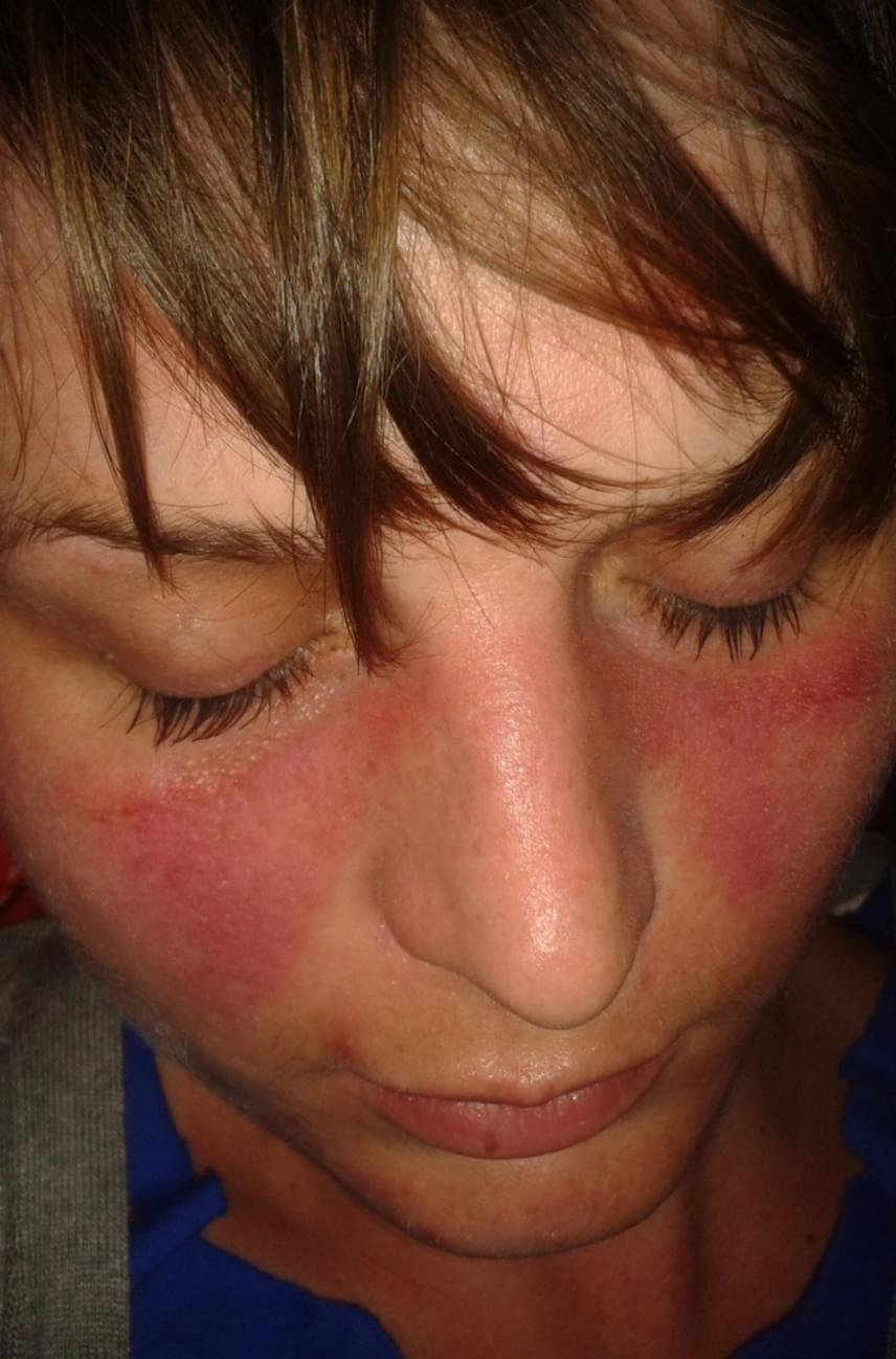 vörös foltok az arcon és az orron