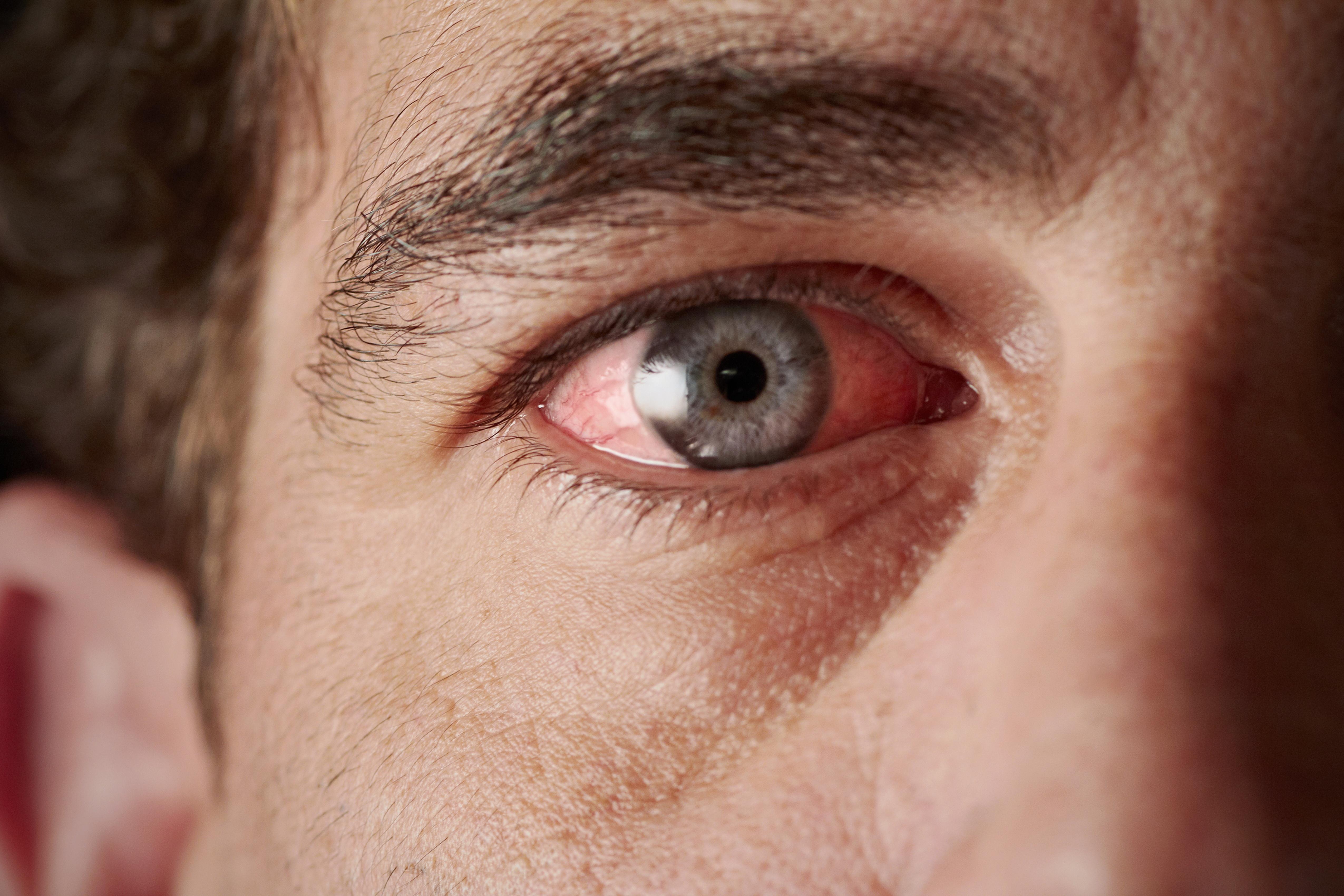vörös pikkelyes folt a szem sarkában vörös foltok a testen viszketnek egy felnőtt fotón