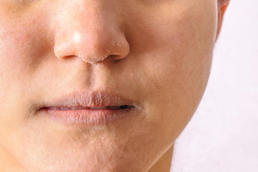 hogyan kezelje az arcát a vörös foltok miatt vörös érdes foltok a bőrfotón