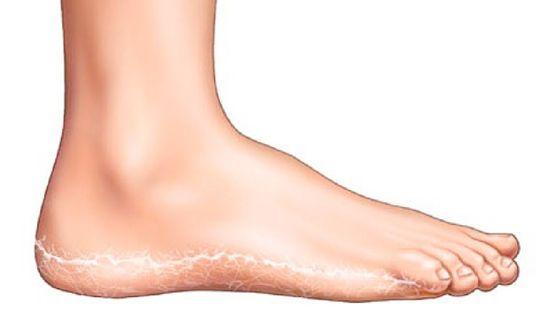 vörös, pikkelyes, kerek foltok a lábakon a lábakon lévő foltok vörösek egy zúzódás után