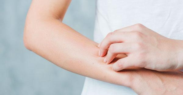 vörös viszkető foltok a kezek kezelésén