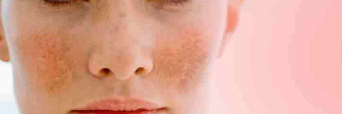 vízvörös foltok után az arcon vörös folt a csuklón és viszket