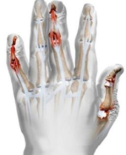 ahonnan a kezek vörös foltokkal borulnak hideg pikkelysömör kezelése