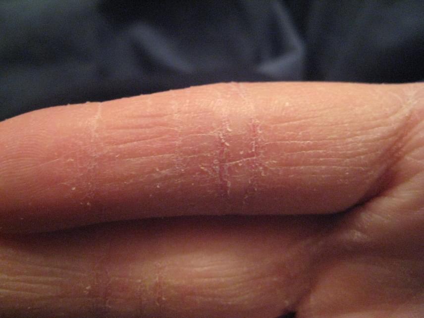 vörös foltok jelennek meg a kéz hámló ujjai között