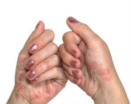 vörös viszkető foltok a kezek kezelésén vörös foltok az arcon gyulladtak