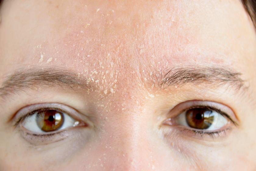 az arcon vörös foltok viszkető hámlás pikkelysömör ujjakon fotókezelés