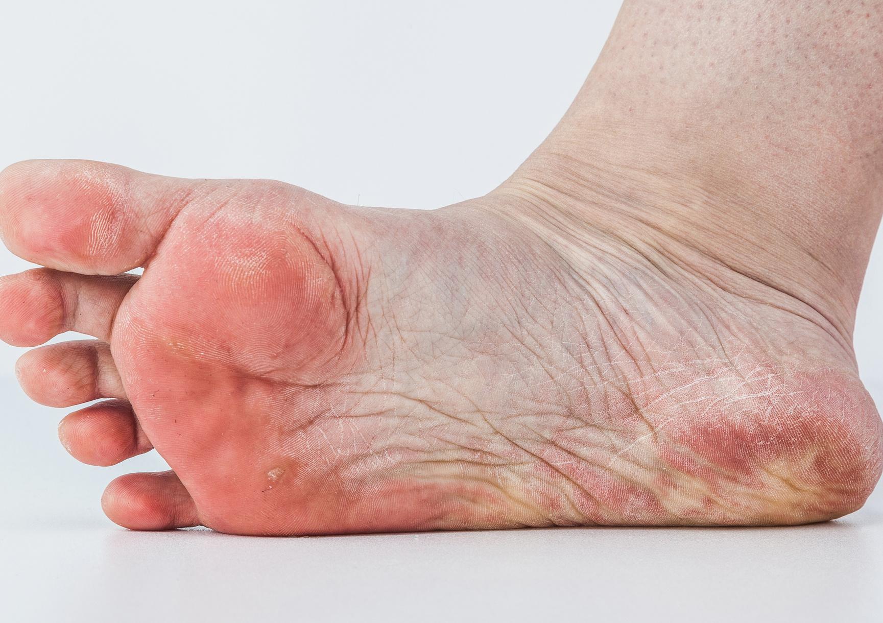vizes vörös folt a lábán vörös folt a bőrön hámlik fáj