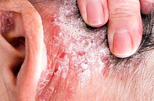 immunmodulátorok pikkelysömör kezelésére