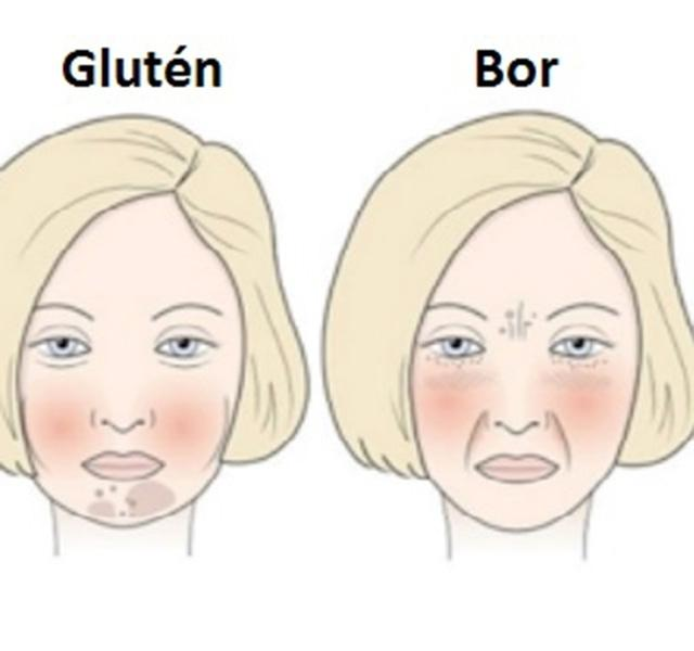 Pikkelyes zuzmó emberben fotókezelés. Allergiás kiütések