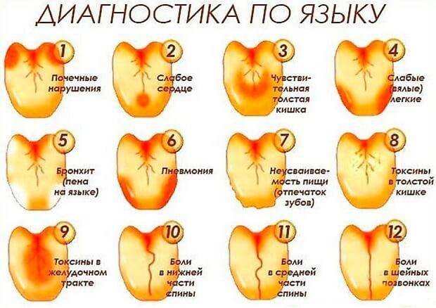 vörös nyelvfoltok okoznak kezelést