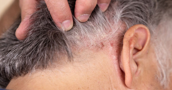 hogyan kell kezelni a fül pikkelysömörét