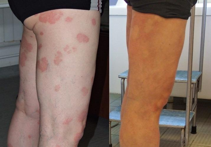 modern pikkelysömör kezelésének módszerei a bőrön egy vörös foltú folt pelyhezik le a hasán
