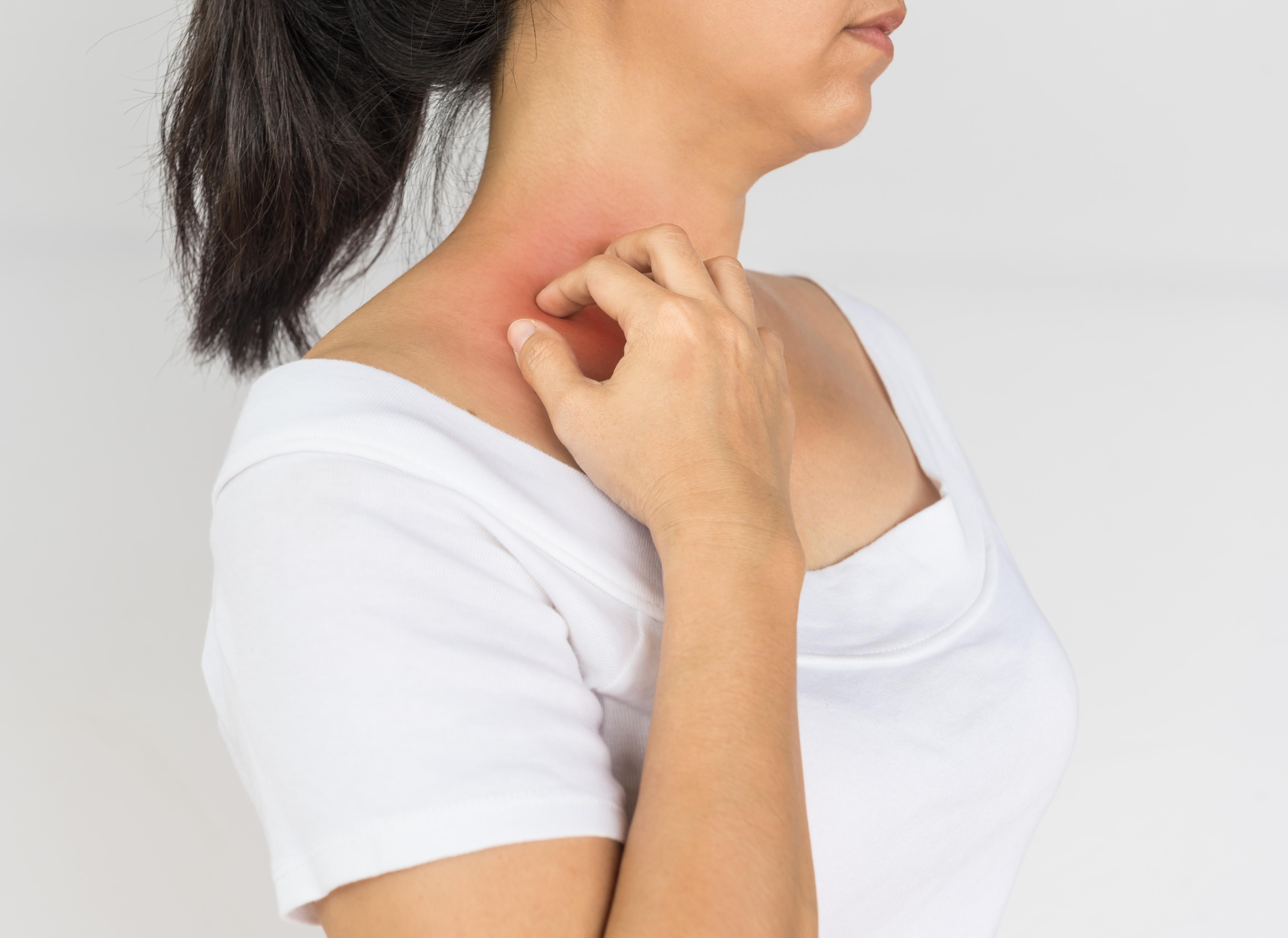 miért van egy piros folt a nyakon és viszket vörös foltok jelentek meg az ujjakon és viszkettek