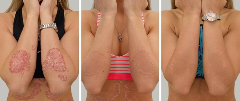 Pikkelysömörös fejbőr kezelése, ápolása - Fejbőrproblémák -