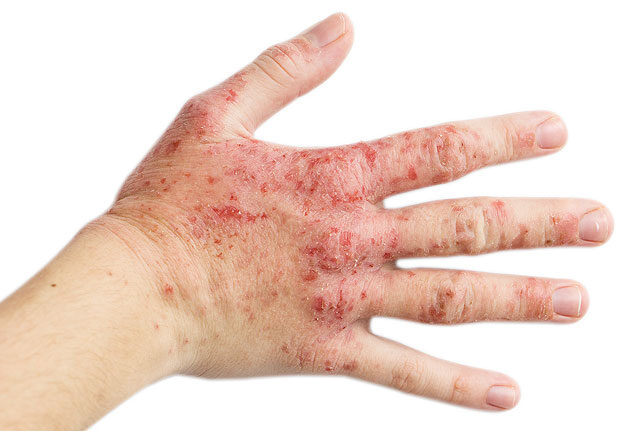 hogyan lehet eltávolítani a vörös foltokat a sebek után