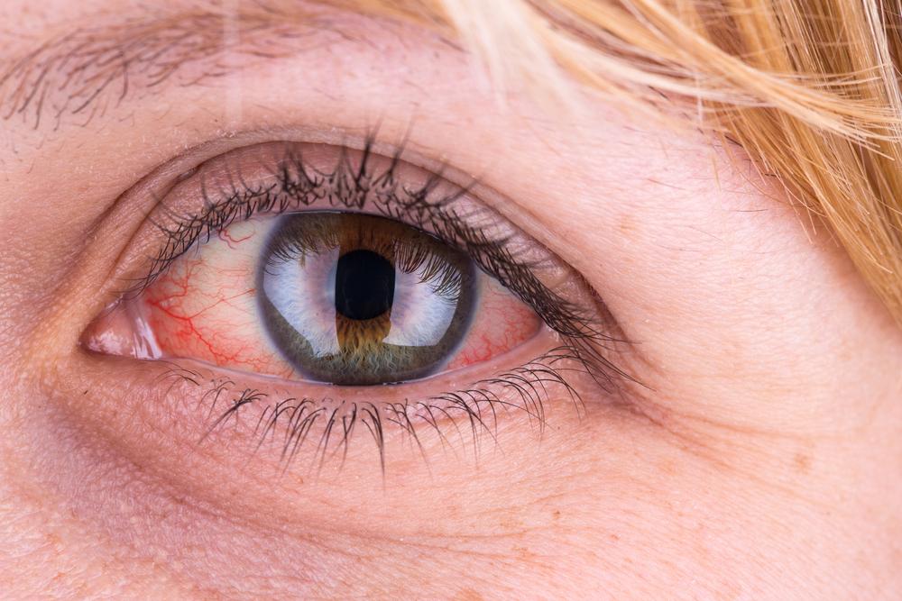 a felső szemhéj vörös foltos kezelésén hogyan kell kezelni az ég piros foltjait