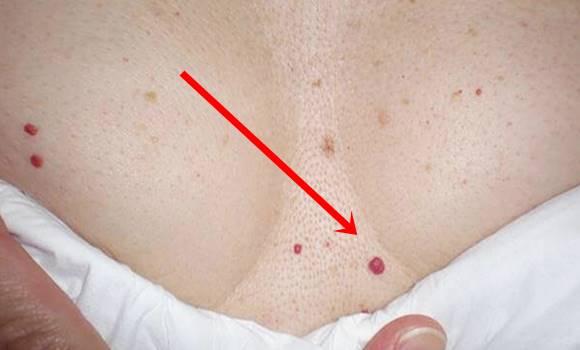 Plázs: Viszkető piros foltok: így kezelhető a csalánkiütés | atarhely.hu