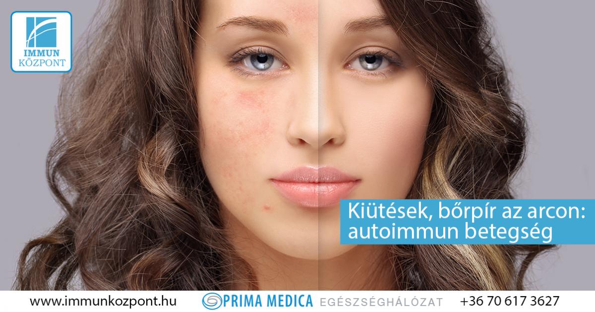 kenőcs második bőr pikkelysömör hatékony gyógymód a pikkelysmr ellen