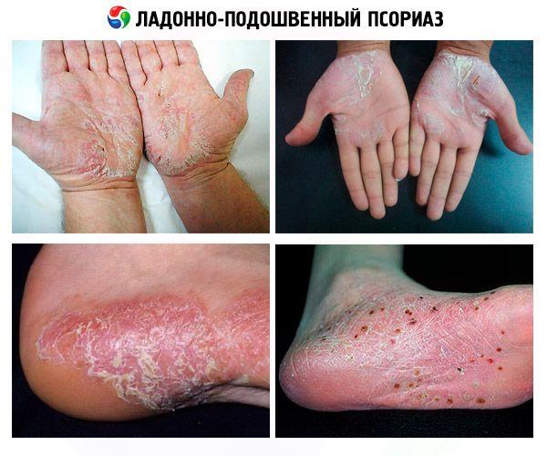 pikkelysömör gél egészséges bőr mumiyo a pikkelysmr kezelsben