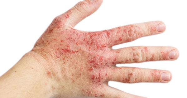 vörös foltok és hámlás a kezeken