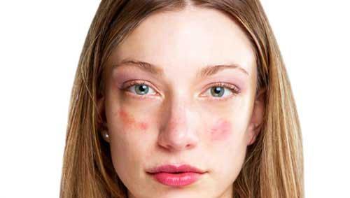 a hidegtől az arcot vörös foltok borítják