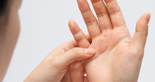 a pikkelysömör gyógyszereinek klinikai vizsglatai