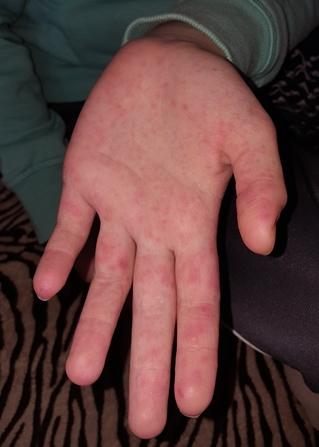 száraz vörös folt az ujján vörös száraz folt a kézen mi ez
