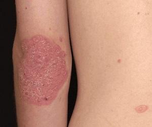 pikkelysömör kezelés etiológiája vörös bordó foltok a lábakon