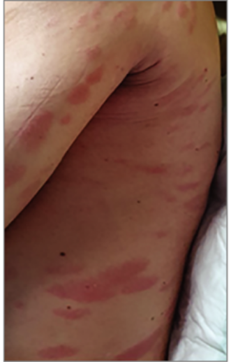 kitörések a bőrön vörös foltok formájában viszkető felnőtt fotókon