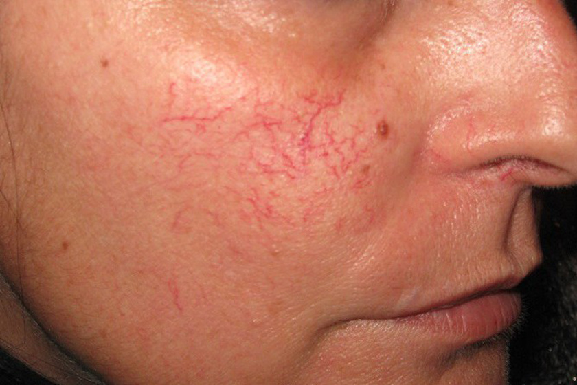 Piros pókhálóerek az orron: ez az oka - EgészségKalauz