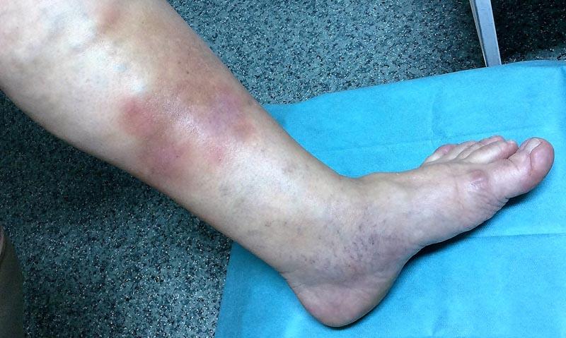 fényes vörös folt a lábán