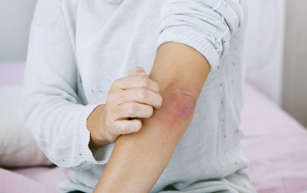 Sokan rosszul tudják: 6 tény a pikkelysömörről - EgészségKalauz