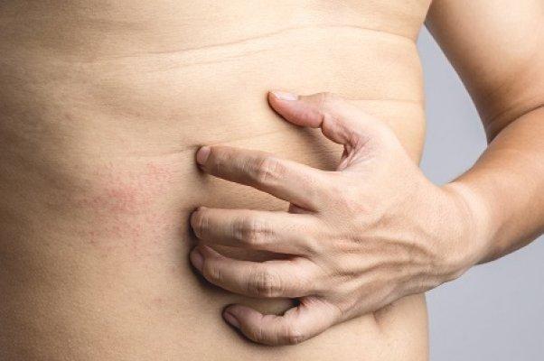 Mi van, ha van egy piros folt a gyomorban?