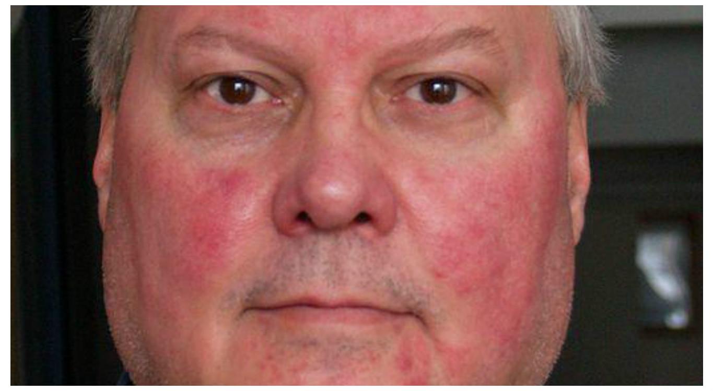 Az arc ég és vörös foltokban - Viszketés és vörös arc - Cukorbetegség is okozhatja
