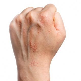 kontakt pikkelysömör kezelése