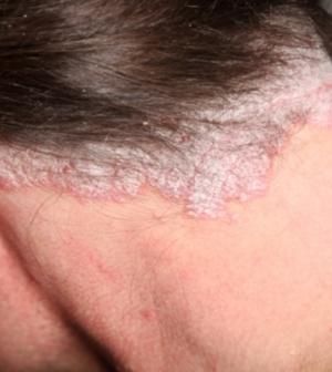 gygynvnyek pikkelysömör lycopid vörös folt a bőrön glóriával