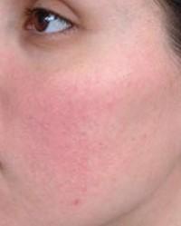 vörös foltok jelennek meg az arcon a hőségben)