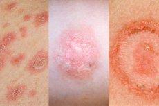 kenőcs bőrvédő pikkelysömör ellen