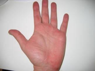 a hüvelykujján vörös folt jelent meg)
