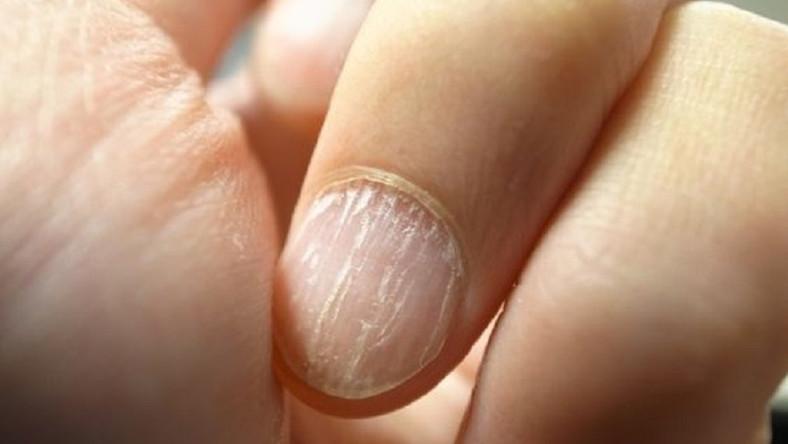 vörös foltok a hüvelykujján pikkelysömör őszi kezelés