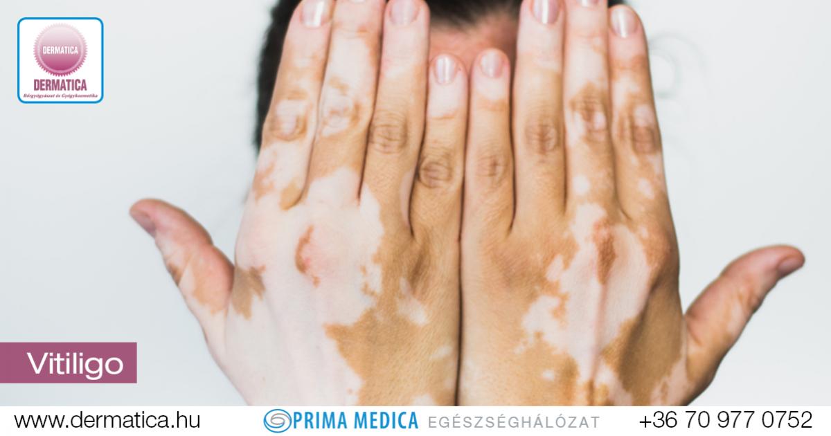 Allergiás reakciók a pikkelysömör gyógyszereire