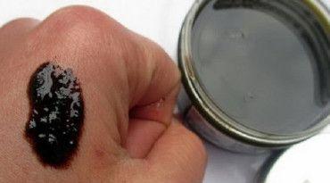 toe pikkelysömör kezelése kerek piros folt a kezén fotó