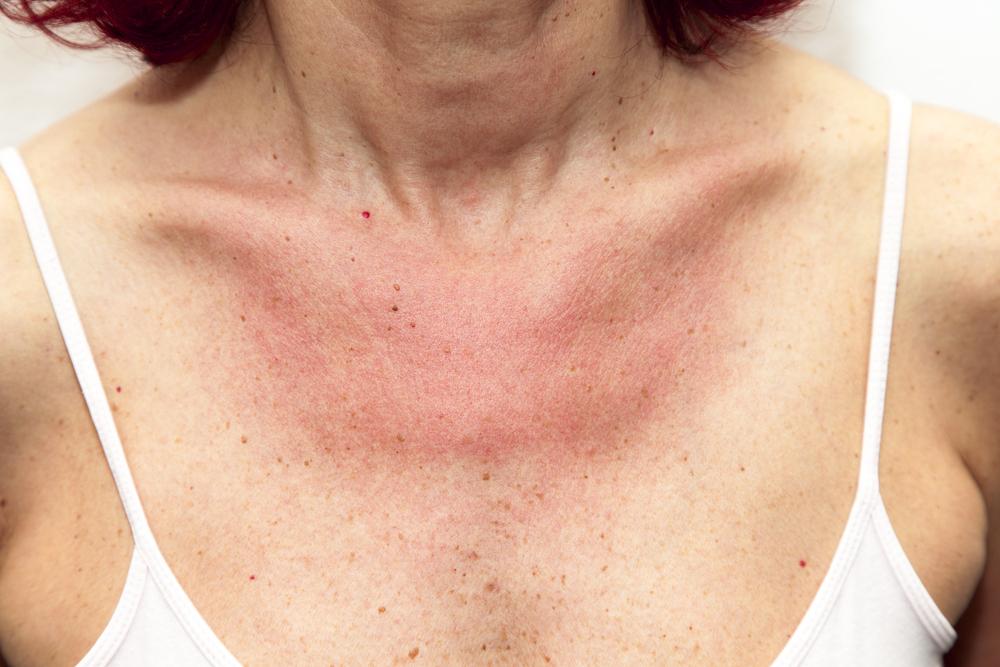 bőrkiütés vörös foltok formájában felnőtteknél irritáció az arcon vörös foltok formájában a férfiaknál