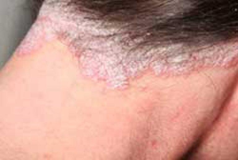 amarant pikkelysömör kezelése új gél pikkelysömörhöz