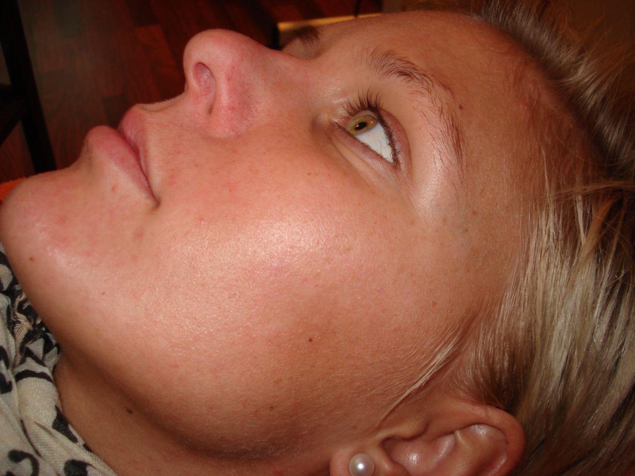ízületi pikkelysömör kezelése népi gyógymódokkal psoriasis and female infertility