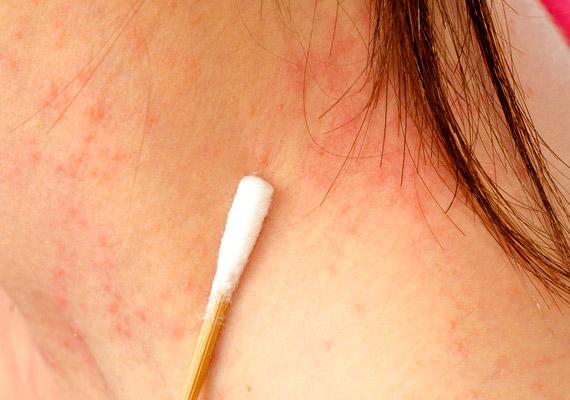 bőrbetegségek vörös foltok a bőrbetegségen fotó vörös foltok a kisujján
