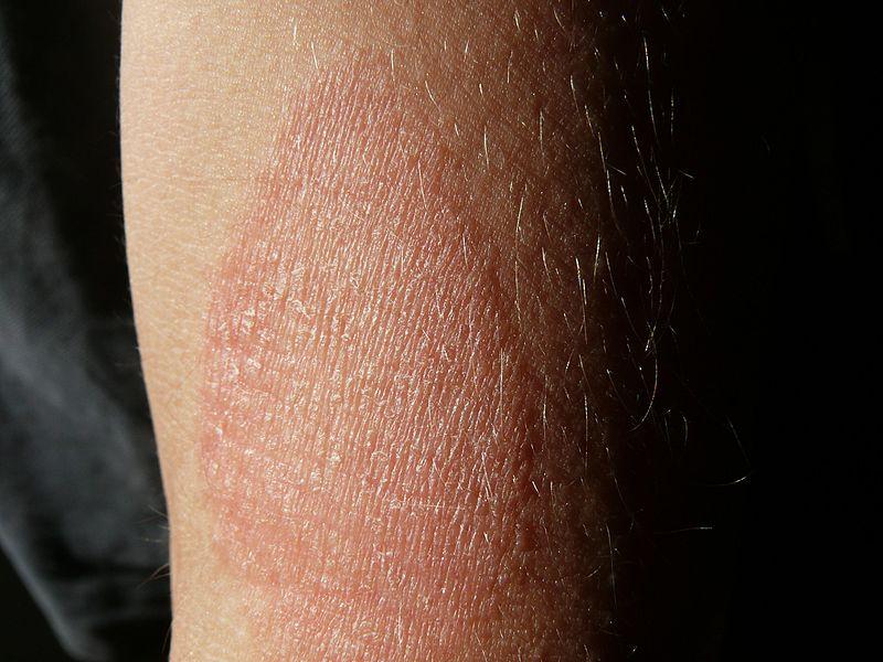 vörös pikkelyes folt a láb bőrén