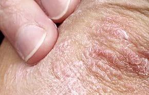 pikkelysömör kezelése a kezdeti szakasz kezein vörös pikkelyes folt a láb bőrén